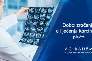 Doba zračenja u liječenju karcinoma pluća