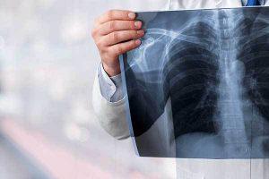 """""""Pametni"""" lekovi su preuzeli vodeće mesto u lečenju raka pluća"""